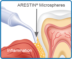 Arestin antibiotic therapy
