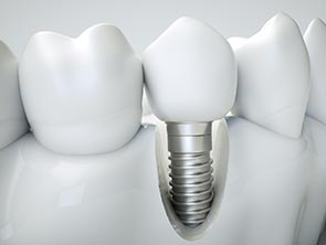 Cutaway of a dental implant