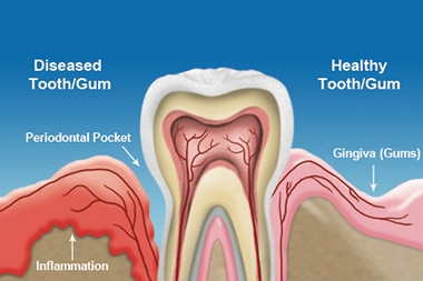 Diagram of gum disease